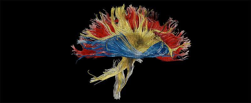 Epilepsy art Jamie Kawadler